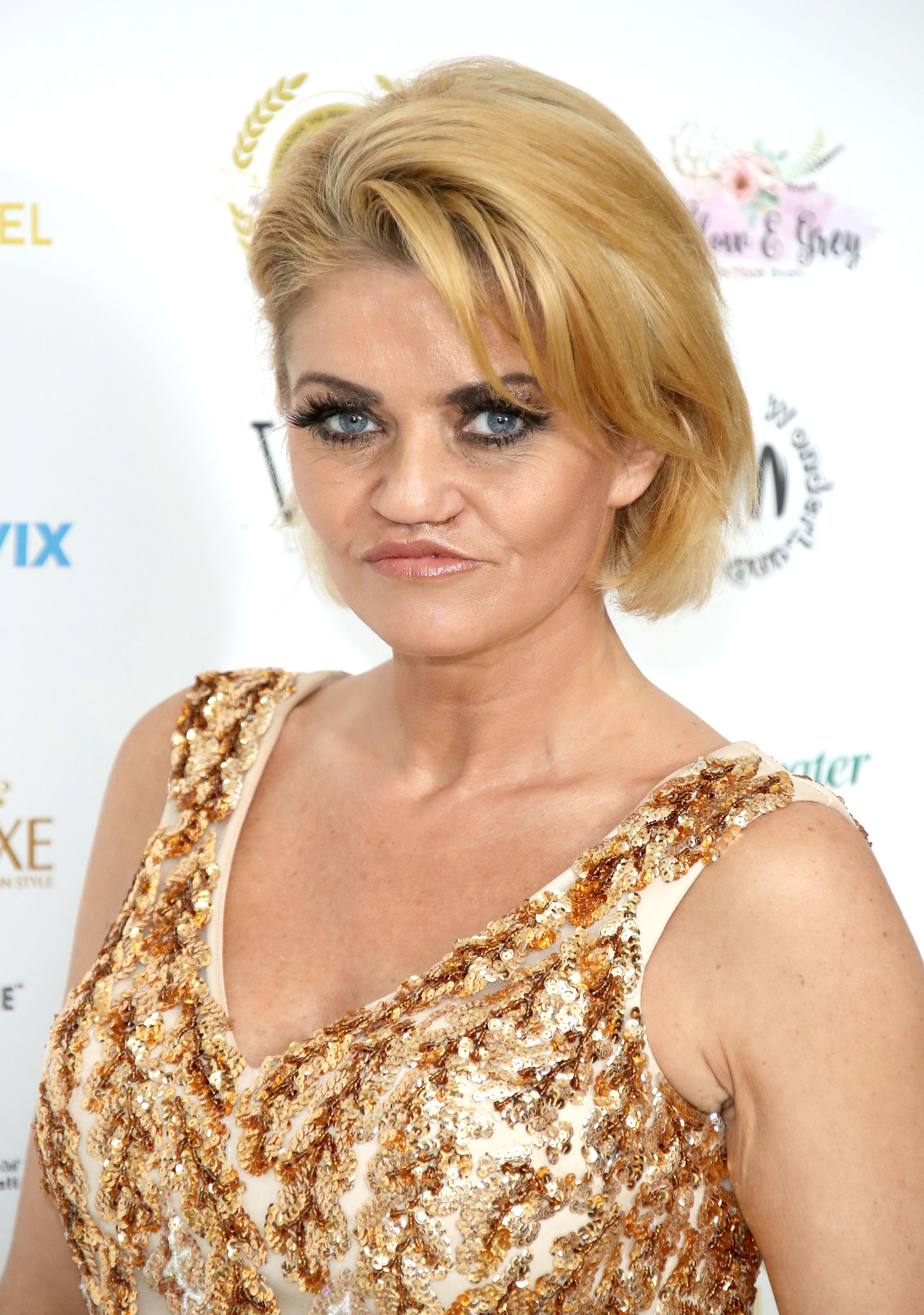 Danniella Westbrook Says Her Face Is 'Rotting Away' Due To Botched Surgery