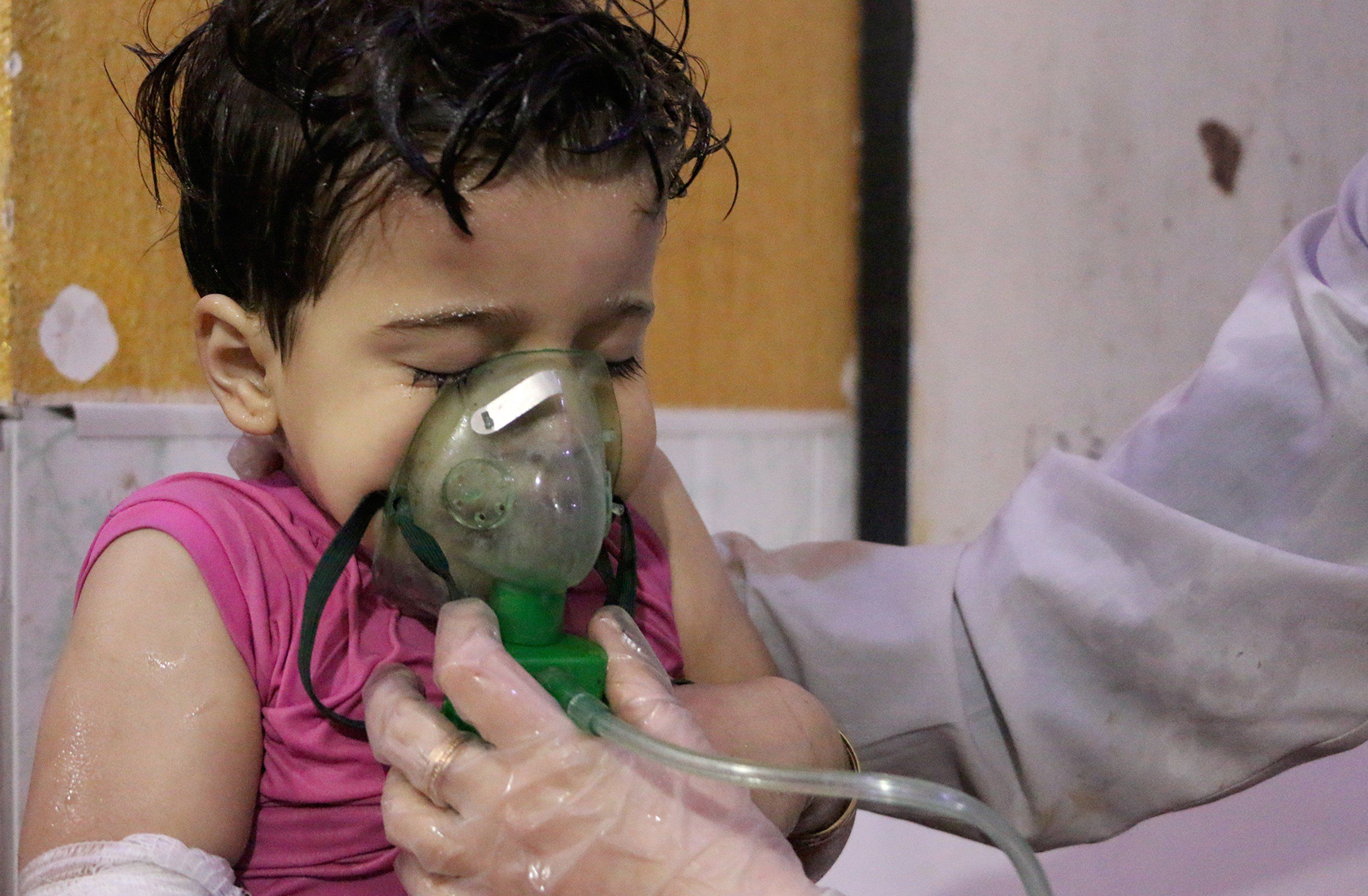 A Syrian child receives medical treatment after the chemical attack on Douma