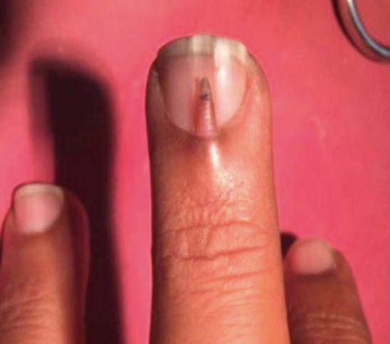 """""""Extrem selten"""": Ärzte staunen, was auf dem Fingernagel eines Mannes"""