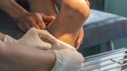In Australien verbreiten sich aggressive Geschwüre –Ärzte stehen vor einem