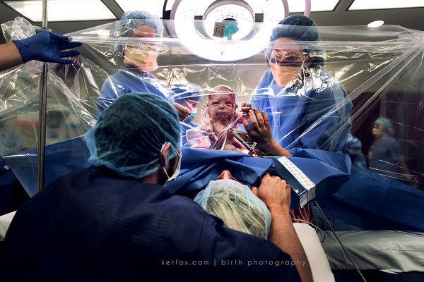 출산의 순간을 날 것 그대로 보여주는 멋진 사진 20장