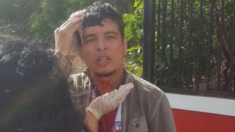 Dazed bloodied protester gets help