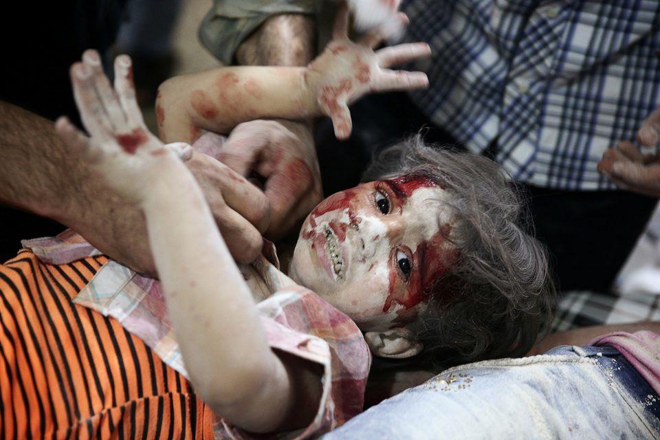 Ein Kind wird im September 2016 nach Luftangriffen in einem Feldkrankenhaus in dem von Rebellen dominierten...