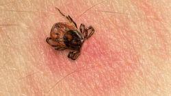 Maladie de Lyme: La maladie