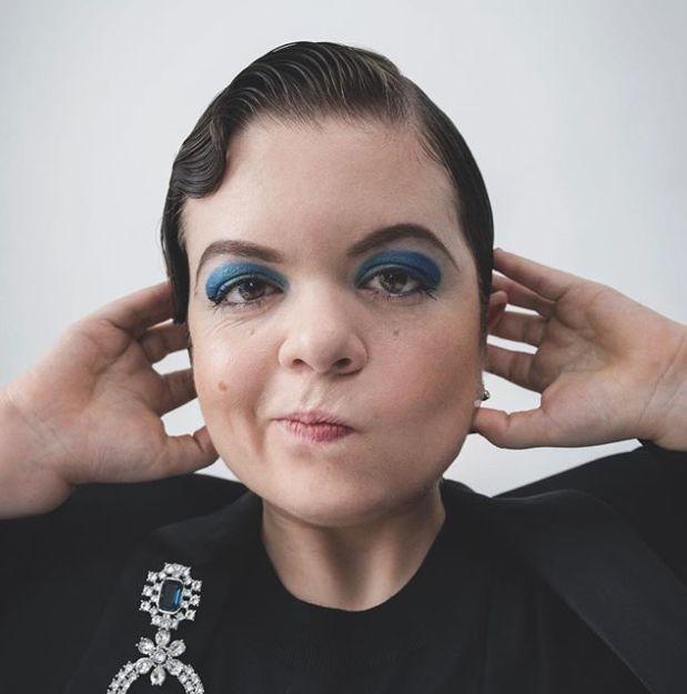Μια ακτιβίστρια με αναπηρία έκλεισε το πρώτο της εξώφυλλο σε περιοδικό μόδας - στο δεύτερο η Kim