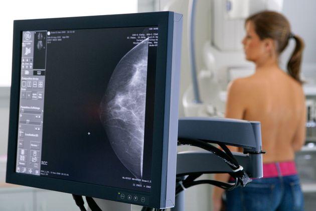 270 γυναίκες έχασαν τη ζωή τους από καρκίνο του μαστού επειδή ο αλγόριθμος ήταν