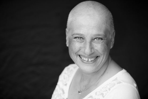 I May Have Lost My Hair During Chemotherapy, But I Gained A New Confidence