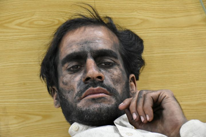 A worker, who survived after a coal mine explosion in Marwar area, rests at a hospital in Quetta, Pakistan, on May 5, 2018. (
