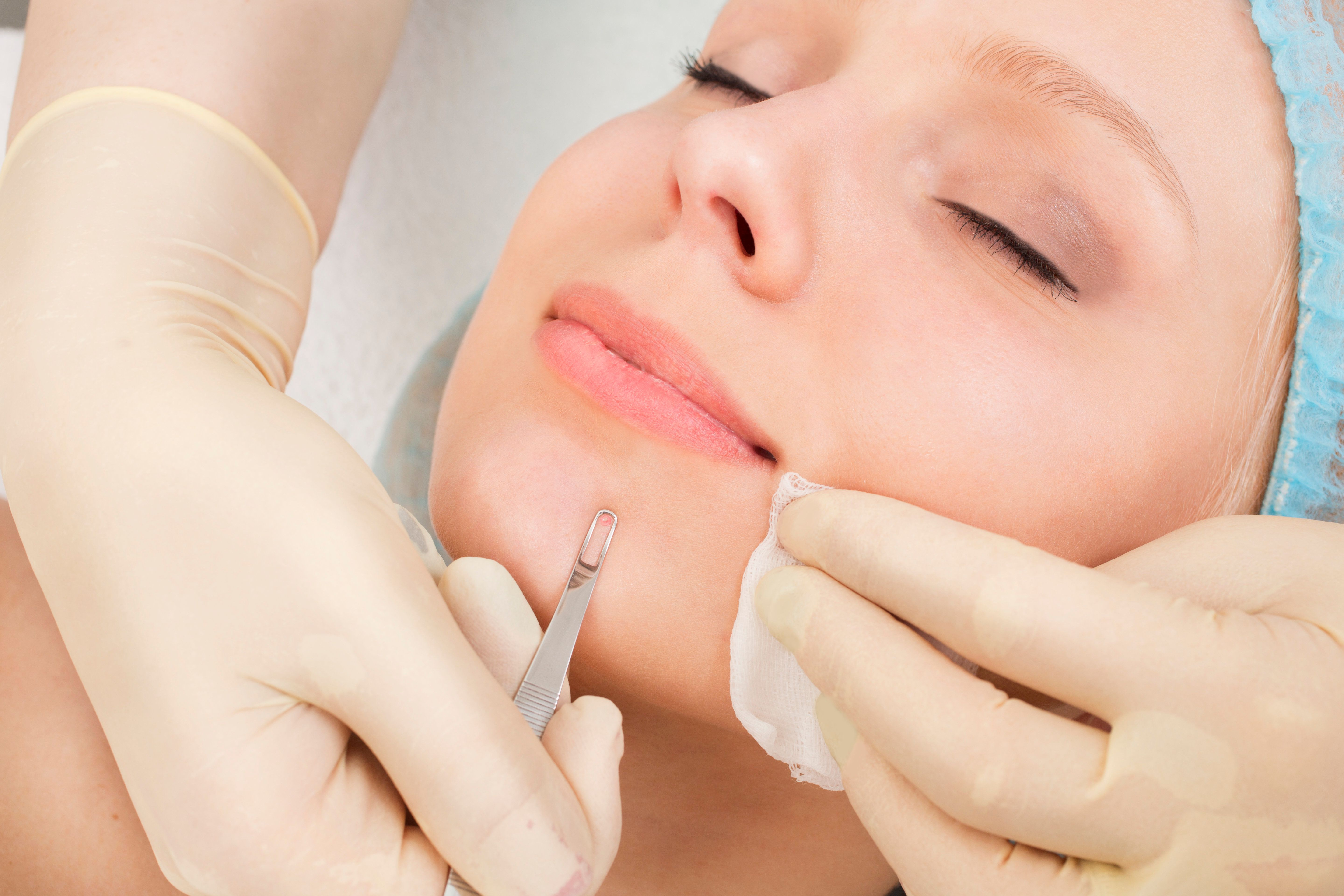 Remarkable, Deep extraction facial All above