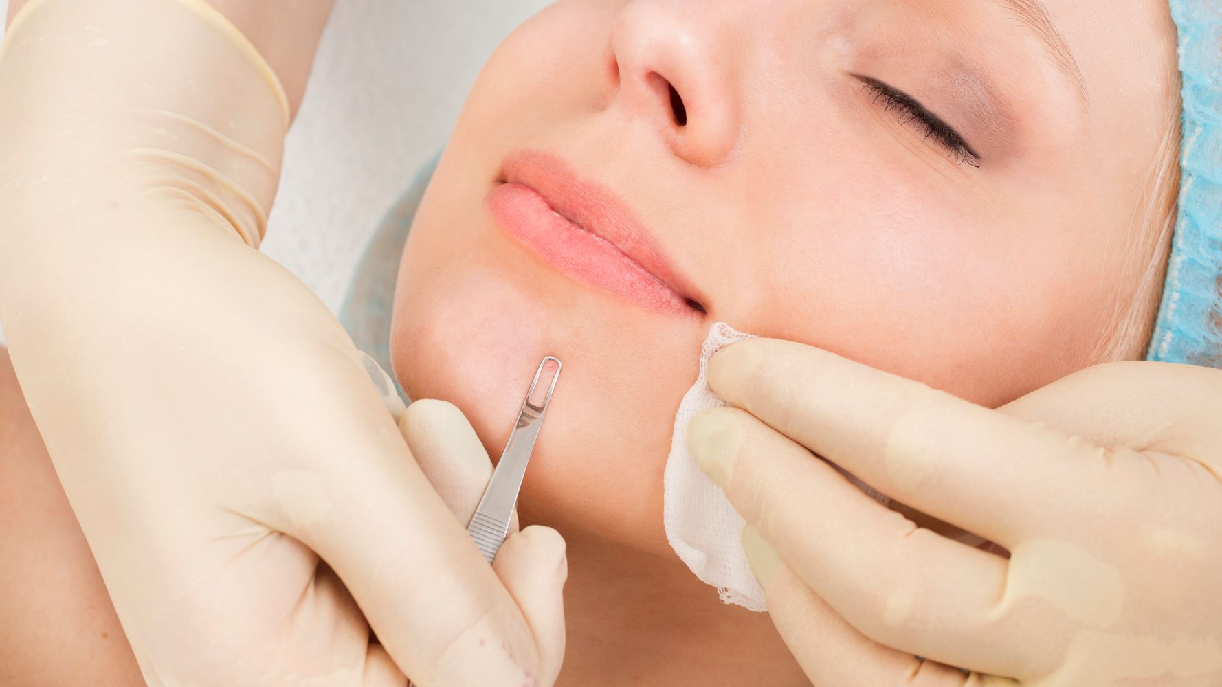 Are Blackhead Extractions Good For Our Skin Or Not Huffpost Life