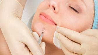 Beautician removes pimples on girl chin. Cosmetic facial cleansing