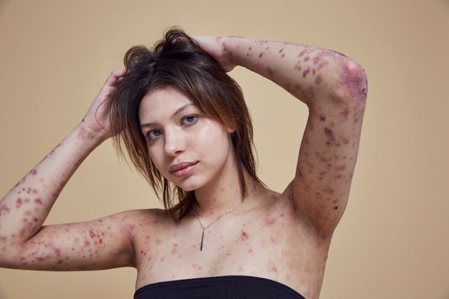 Model Proves Blistered Skin Is Not A Flaw In New Missguided Campaign