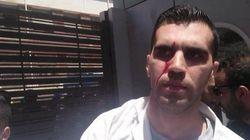 Oran: Les médecins résidents réprimés par la