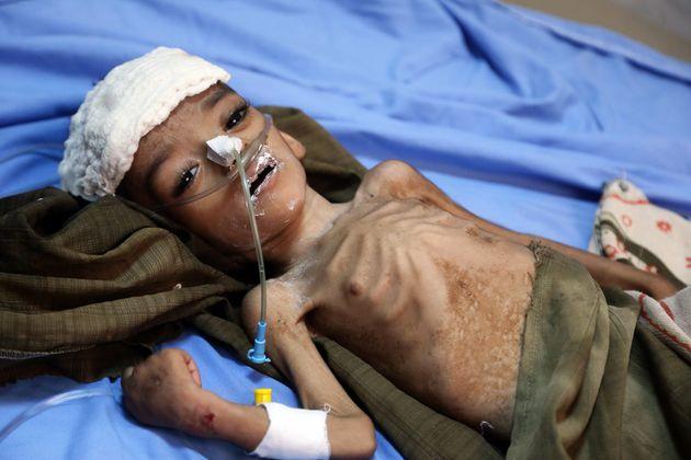 A malnourished Yemeni child awaits treatment at a hospital in the Yemeni port city of