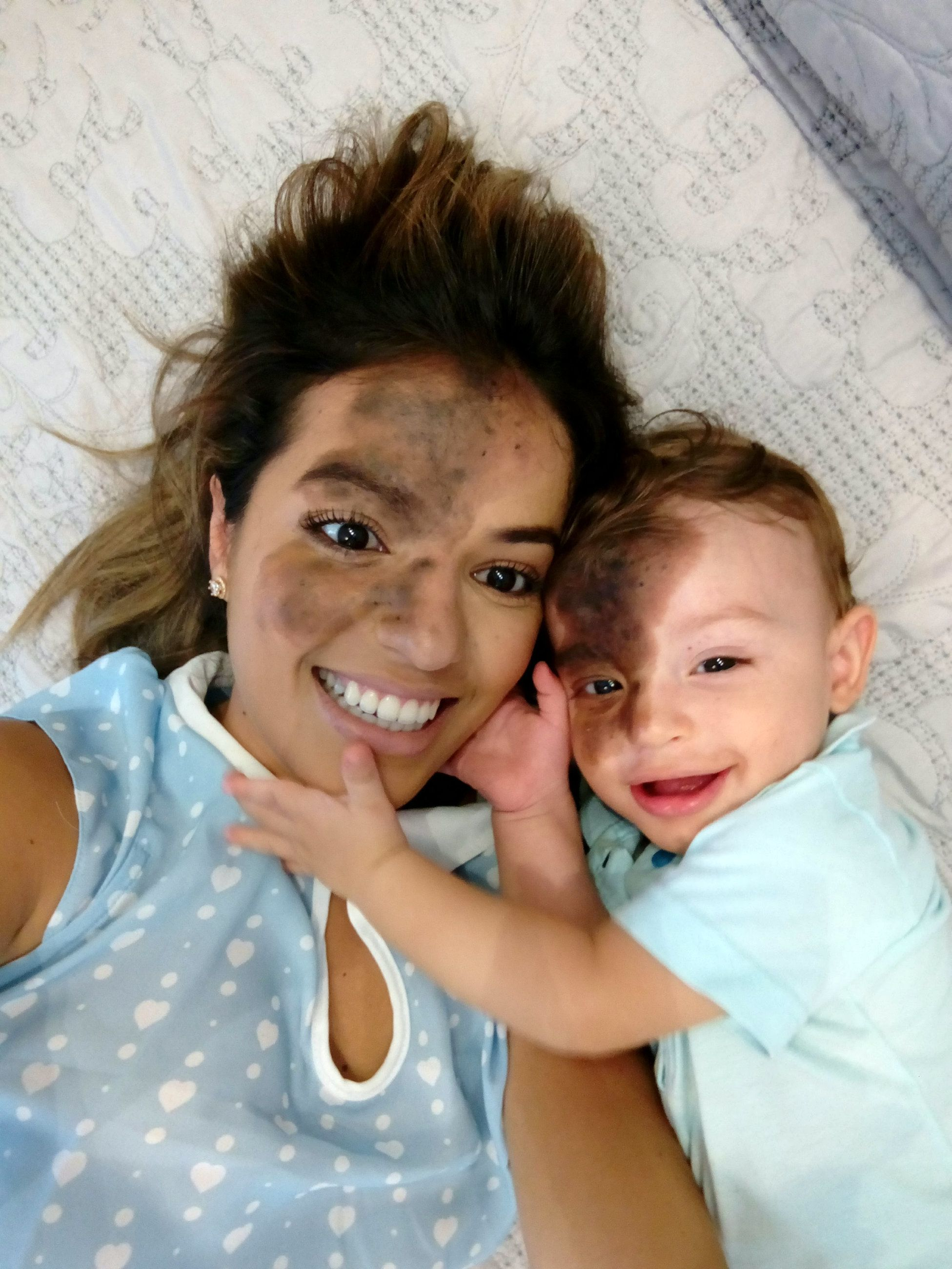 Mum Paints On Replica Of Son's Birthmark So She Can Experience The Prejudice He