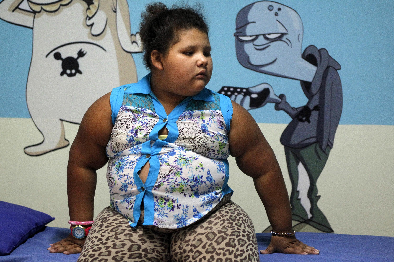 Près d'un quart de la population mondiale pourrait être obèse en