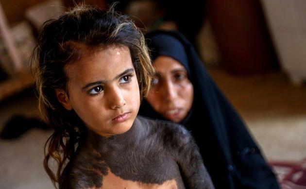 Dans un village d'Irak, une fillette mise au ban à cause d'une maladie