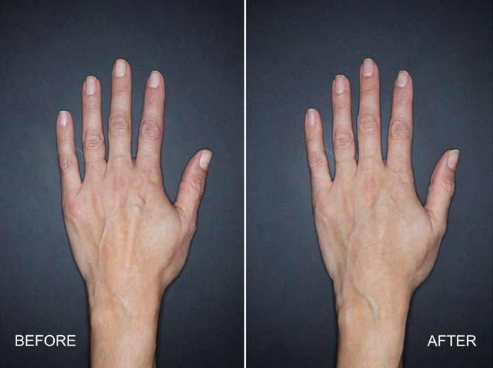 A patient's hand seen before (left) treatment and four weeks after being injected with Restylane Lyft.