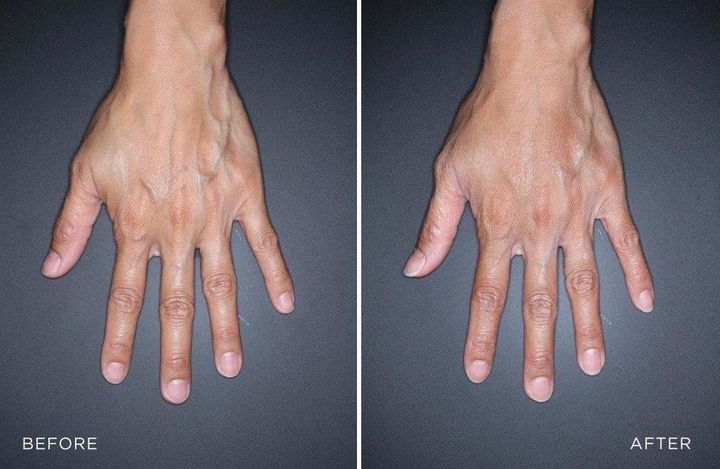 On the left, a patient's hand before being treated with filler and, on the right, her hand after treatment.