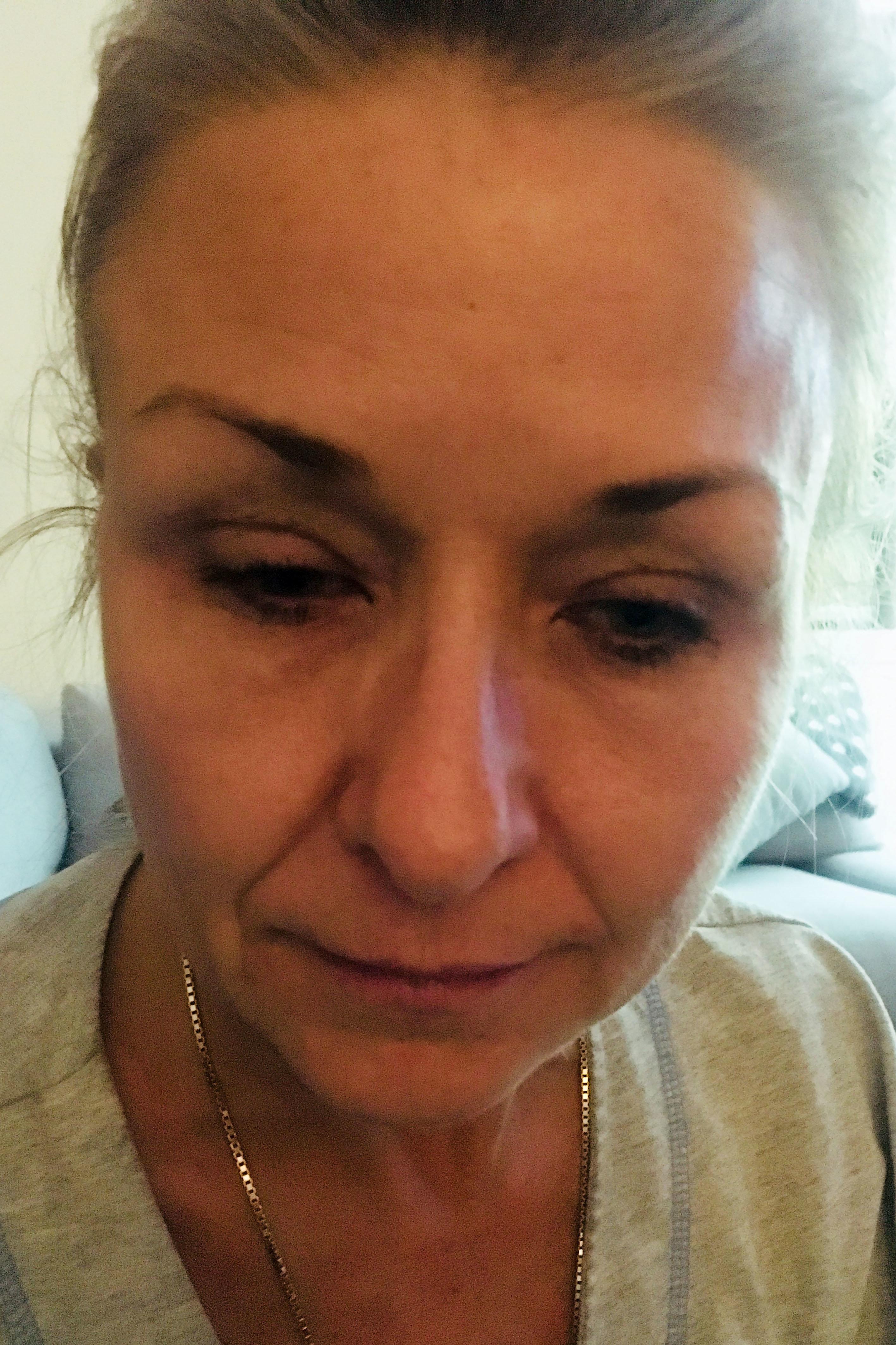 Frau schminkt sich 25 Jahre lang nicht ab – der Arzt erschrickt, als er ihr Auge sieht