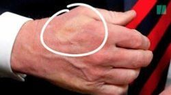 Macron a serré si fort la main de Trump qu'il lui a imprimé la marque de son