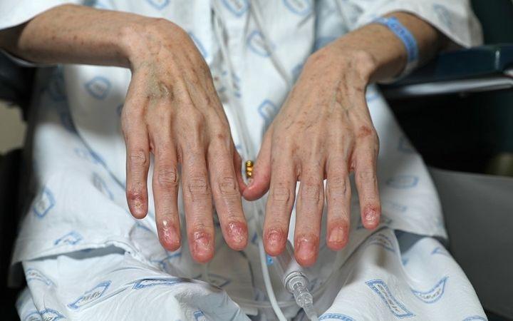 대한항공에서 6년간 북극항로를 비행하다 우주방사선에 피폭돼 급성골수성백혈병에 걸린 전직 승무원 K씨가 대한항공 승무원 가운데 처음으로 백혈병 산업재해 신청을 낸다. 면역질환 합병증으로 손톱이 빠지고 온몸에 검은 반점이 생겼다.