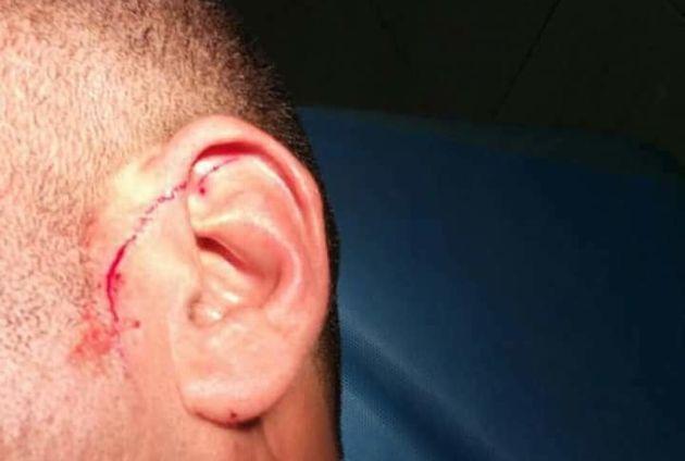 Agression en milieu scolaire: un collégien a attaqué au couteau un surveillant pendant un