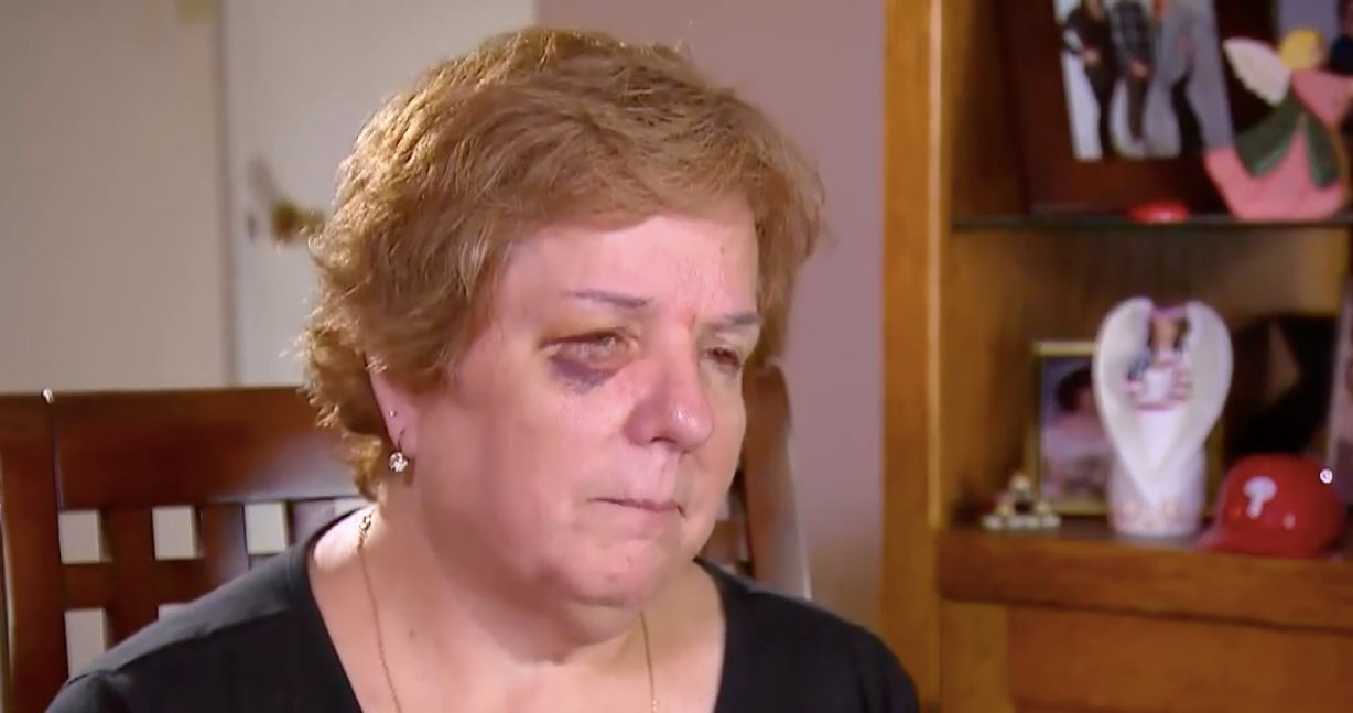 Kathy McVay has a shiner after a friendly-fire hot dog.