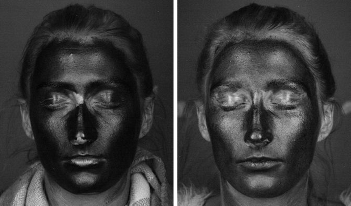 The images show the level of sun protection on the same woman's face undera UV camera, when wearing suncream (left) and when wearing SPF containing moistursier (right).