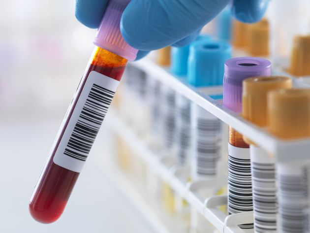 Do You Really Want To Know How Long You've Got Left? A New Blood Test Will Tell