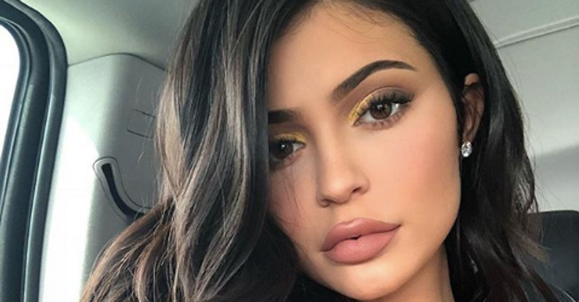 Kylie Jenner Ditches Lip Filler After Years Of Having