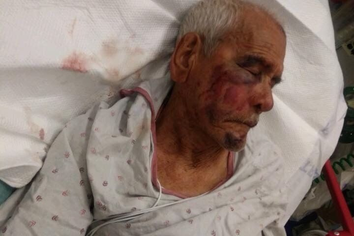 Rodolfo Rodriguez, who will turn 92 in September, recovers in the hospital after the alleged July 4
