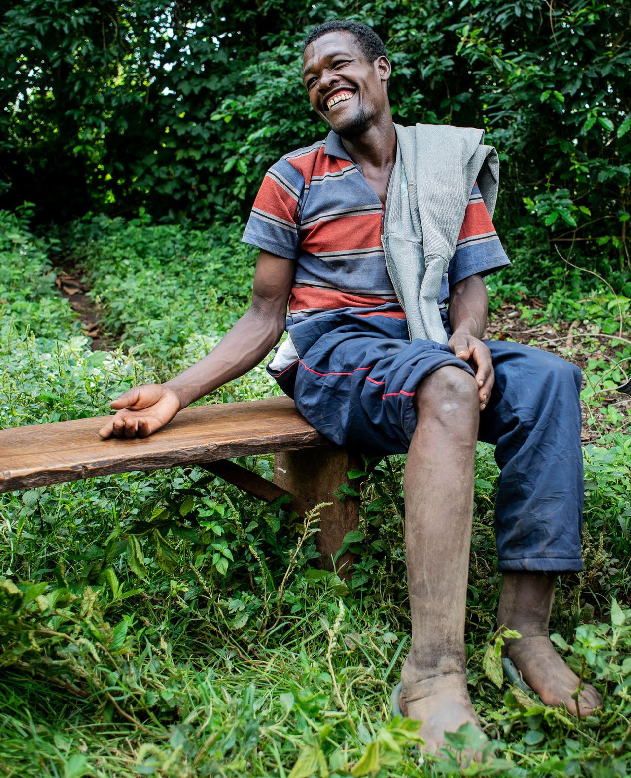 Tesfaye Bezabh in the village of Gesabale in southern Ethiopia has mild podoconiosis and says he rarely wears shoes.
