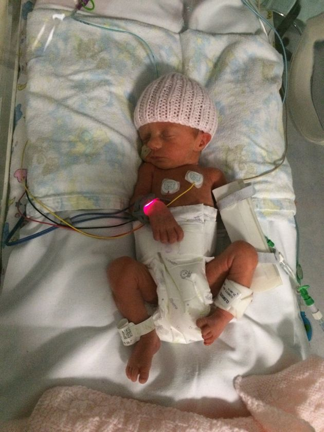 Isabelle in the NICU. Her mum suffered flashbacks to this time when she returned to work and was diagnosed...
