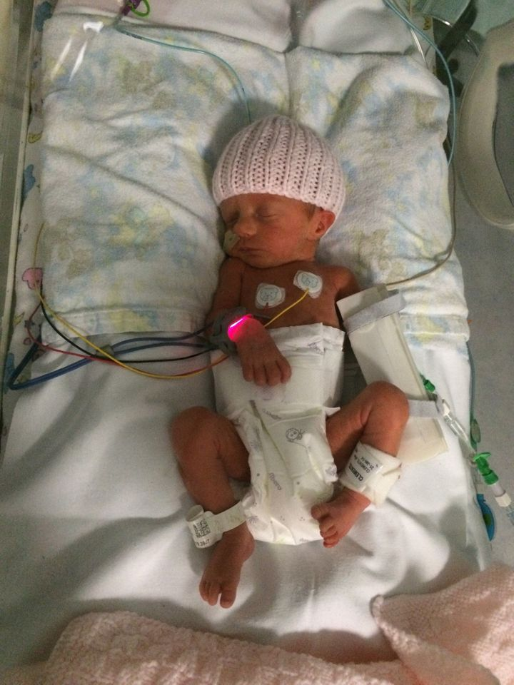 Isabelle in the NICU. Her mum suffered flashbacks to this time when she returned to work and was diagnosed with PTSD.