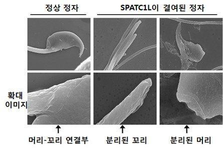 정상 정자와 SPATC1L이 결여된 비정상 정자의