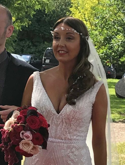 Newlywed Zoe Holohan is being treated in hospital for burns to her head and