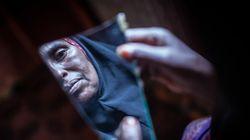 Η Σομαλία ανακοινώνει την πρώτη της δίωξη για ακρωτηριασμό γυναικείων γεννητικών