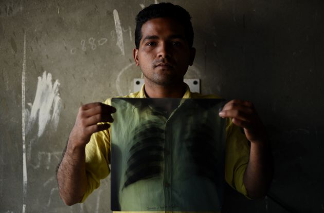 A tuberculosis patient in India shows his chest X-ray. About 2.2 million people are diagnosed with TB...