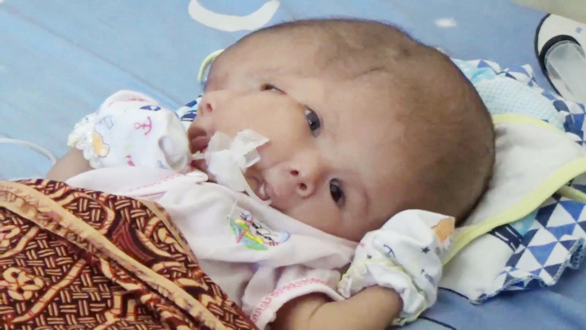 Pic by Yuli Sepri/ Caters News: (Pictured: Here is Gilang Andika born with extra brain of his unborn sibling from Indonesia). An Indonesian couple is desperately hoping for a miracle to save their two-month-old baby boy born with two faces and a life-threatening brain condition. Gilang Andika was born to Erlinasari, 30, through a caesarean section at a private hospital in Batam, in Indonesia on early May. Although Gilang has one body, a pair of arms and legs, in the head, there is an extra brain of his unborn sibling. He also suffers from Hydrocephalus, a condition in which fluid starts building up in brain causing long-term brain damage, learning disabilities, speech, vision or memory problems and eventually leads to death. SEE CATERS COPY