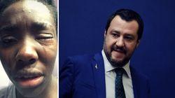 Ein Angriff auf eine schwarze Sportlerin versetzt Italien in