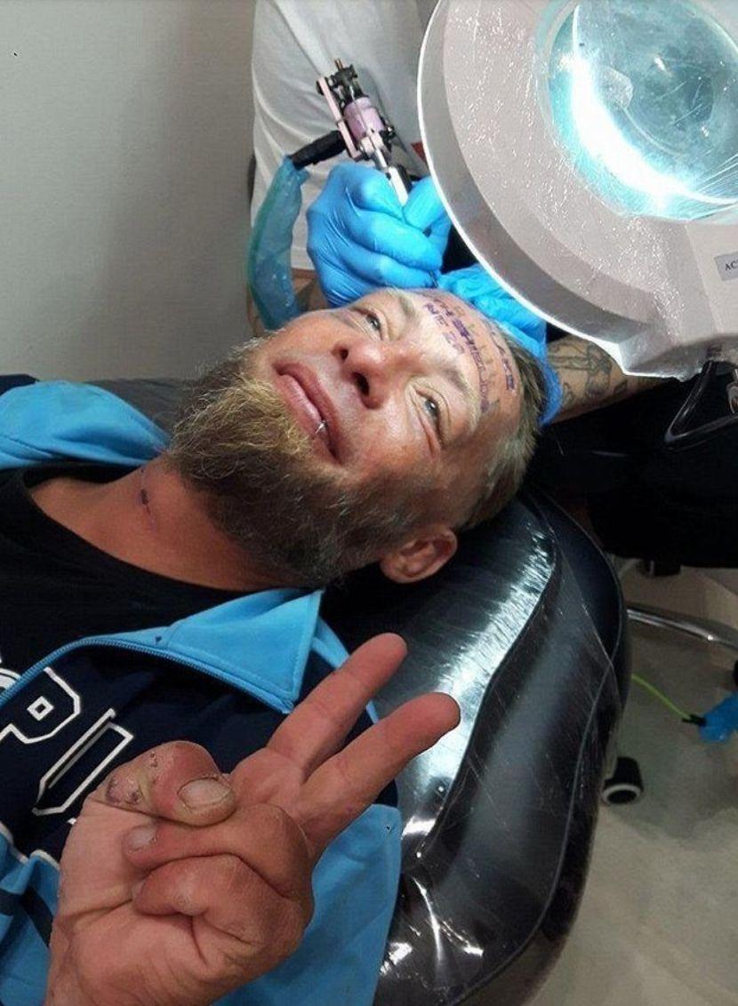Tomek getting his forehead
