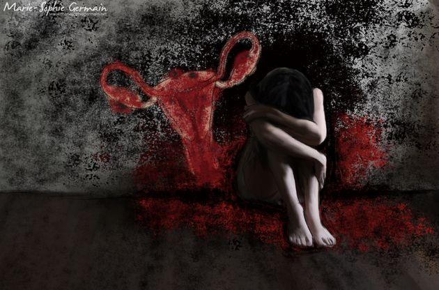 J'ai décidé de dessiner mon endométriose pour montrer la torture que cette maladie me fait