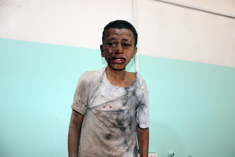 사우디의 예멘 반군 공습으로 '어린이 포함' 수십명이 사망했다