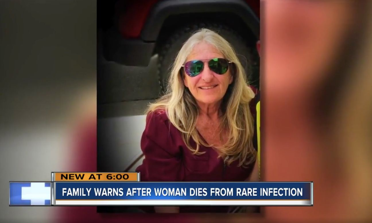 Woman Dies After Dog Saliva Leads To Rare Infection, Family