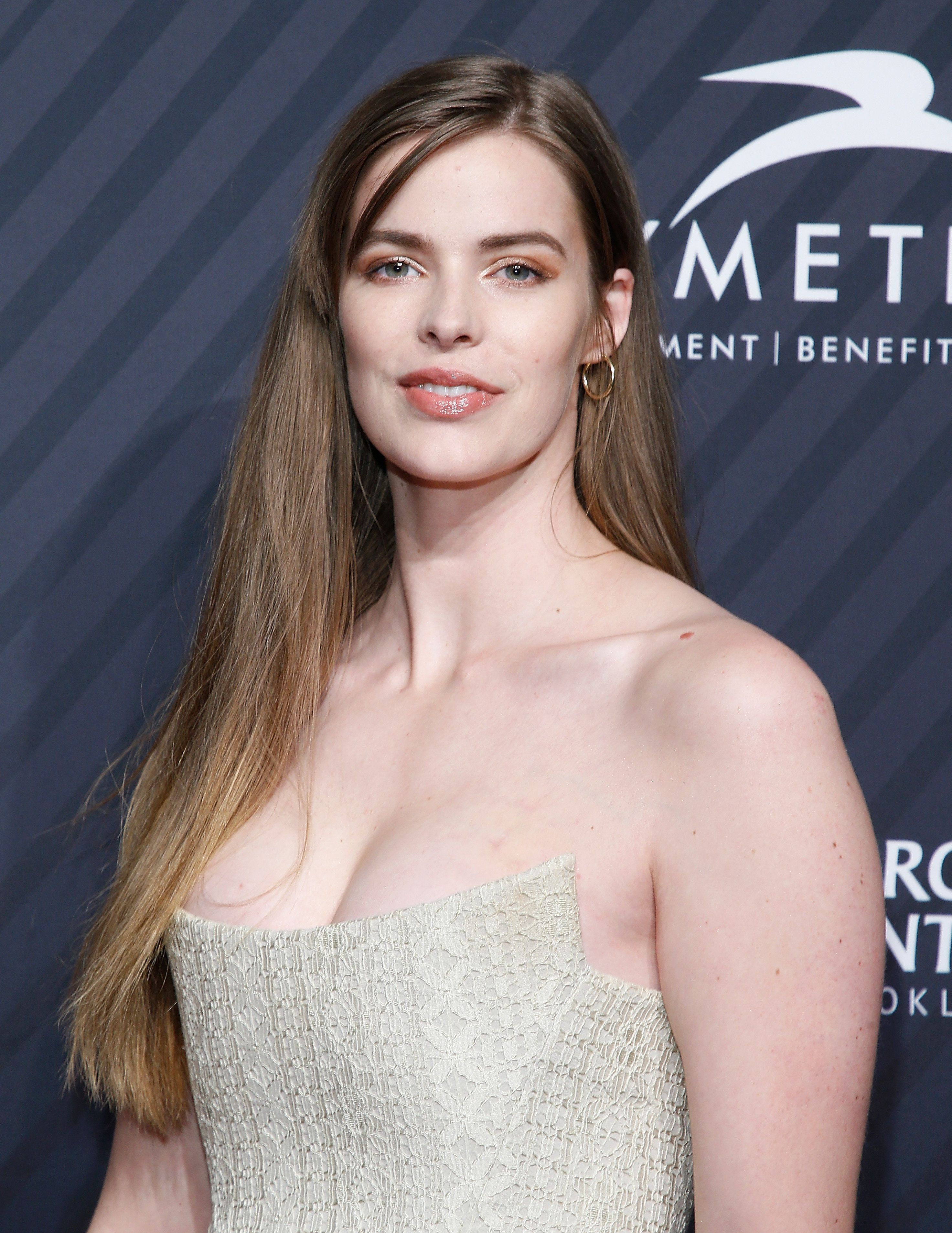 Model Robyn Lawley Reveals Her Scars After Seizure, Scary Fall Down