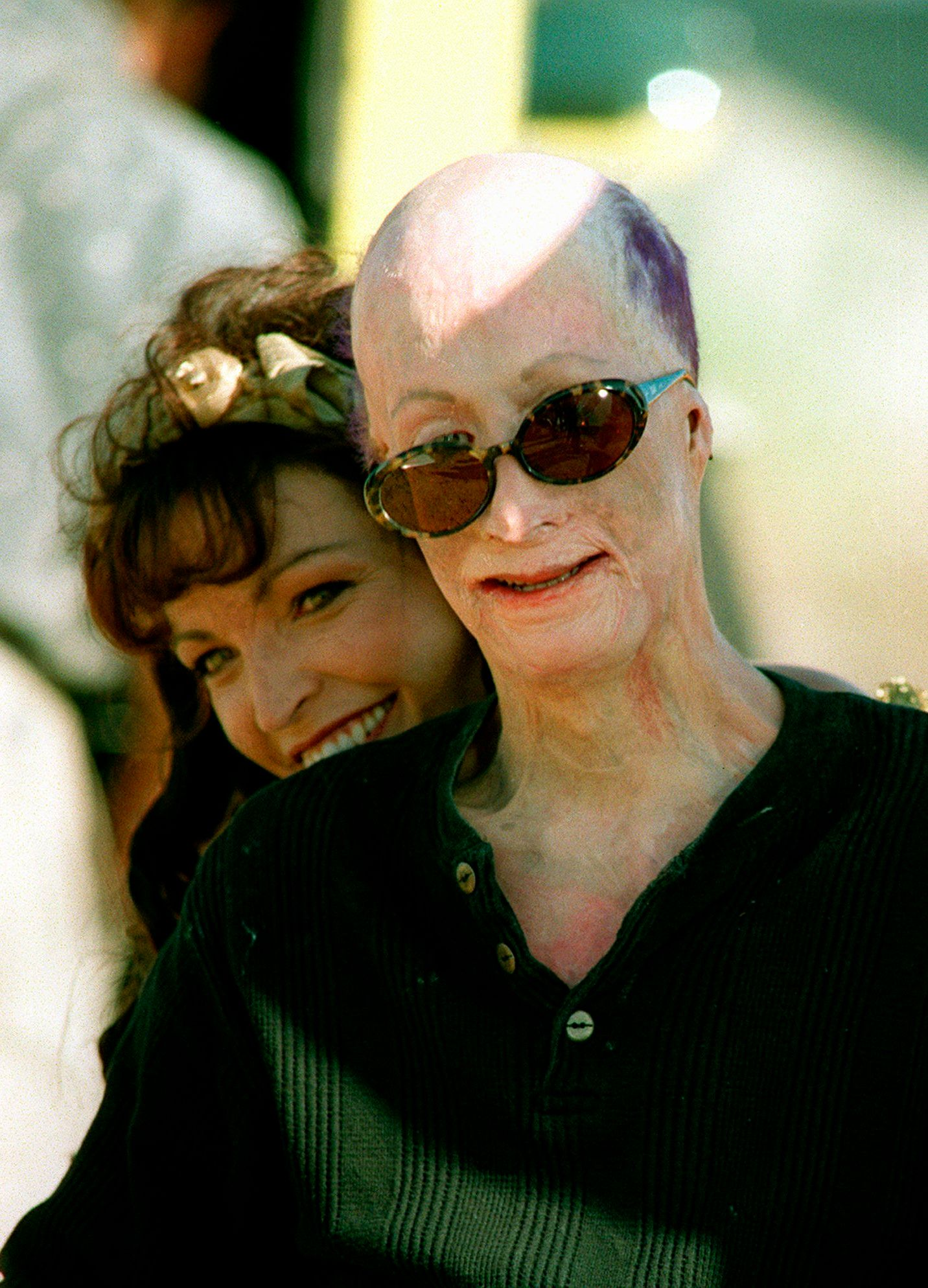 FILE - In this Sept 20 1996 file photo David Rothenberg clowns around with country singer Kelli Lidell as he directs her music video in the San Fernando Valley area of Los Angeles Rothenberg known as Dave Dave who was badly scarred at the age of 6 when his father tried to burn him to death has died He was 42 Clark County Coroner John Fudenberg says Dave died on July 15 2018 at a Las Vegas hospital The cause of death is under investigation Dave was a respected Las Vegas artist and a close friend of Michael Jackson AP Photo/Michael Caulfield File  1