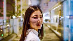 '얼굴의 멍'을 인스타에 드러낸 아야 씨는 한국에도 전하고 싶은 말이
