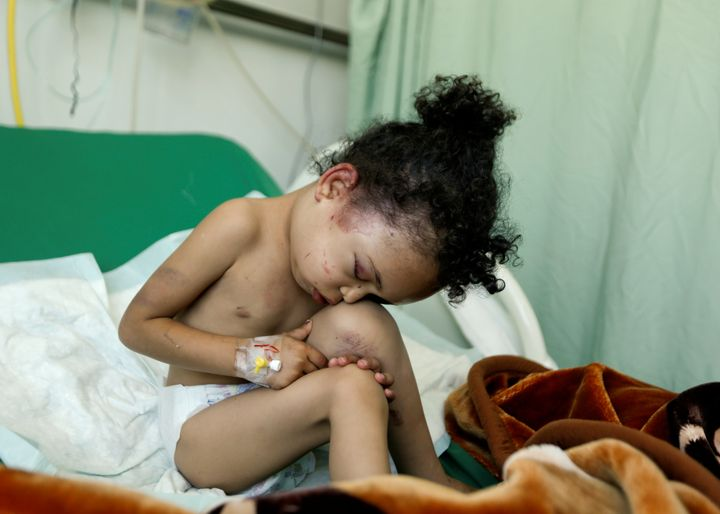Buthaina Muhammad Mansour, believed to be 4 or 5, sits on a bed at a hospital after she survived a Saudi-led airstrike that k