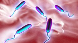 Choléra: 59 cas confirmés et 26 cas négatifs sur 172 cas
